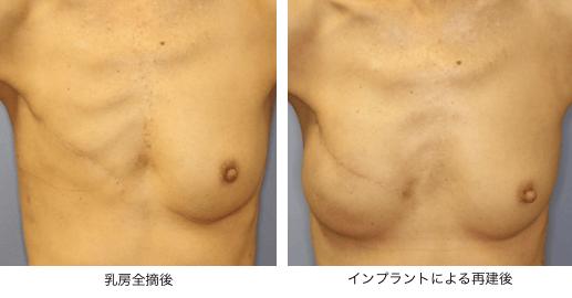 乳房再建 | 形成外科│浜松医科大学